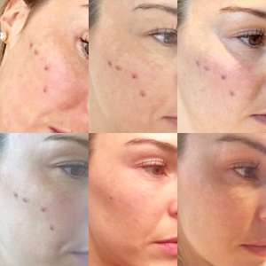 TREATMENT AFTER FROM DAY1 TO DAY6
